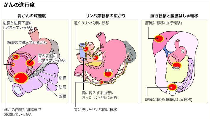 Gyomorrák és a táplálkozás | | Mandala egészségkuckó