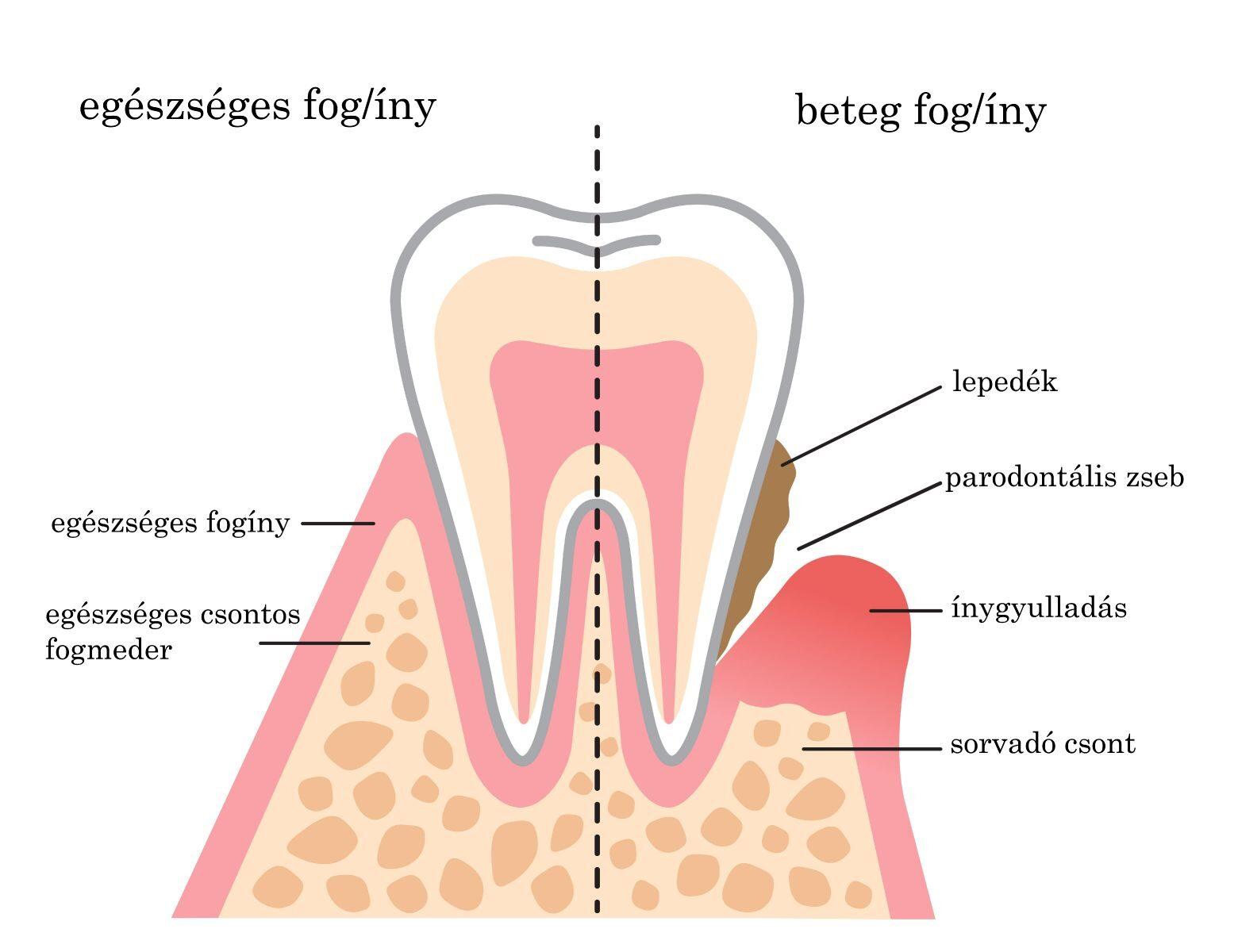 orális rák fogínygyulladás