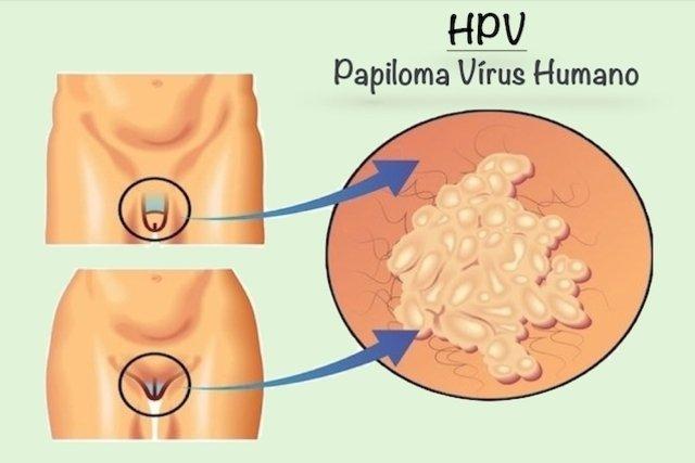 mi az emberi papilloma vírus hpv)