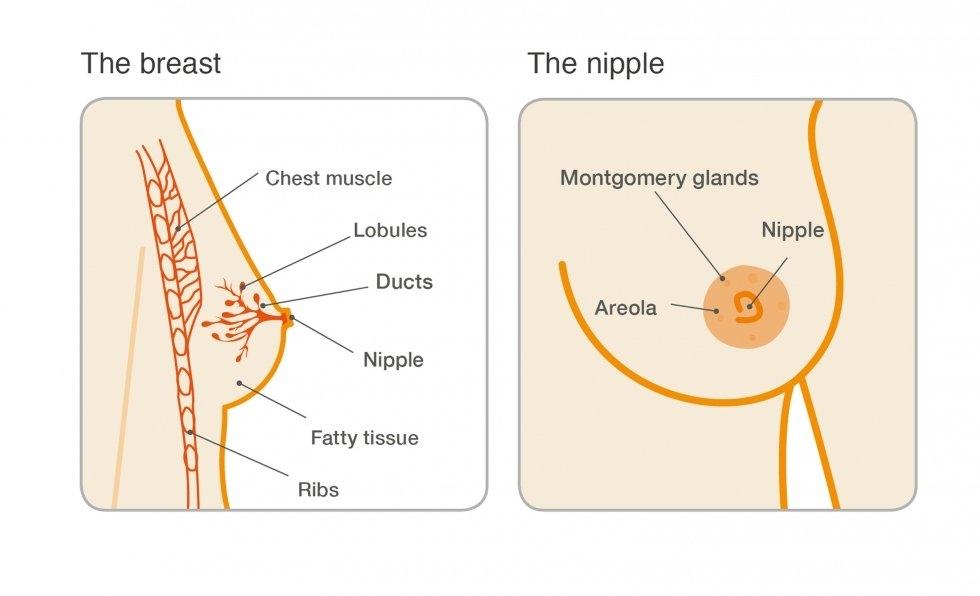 intraductalis papilloma jelei
