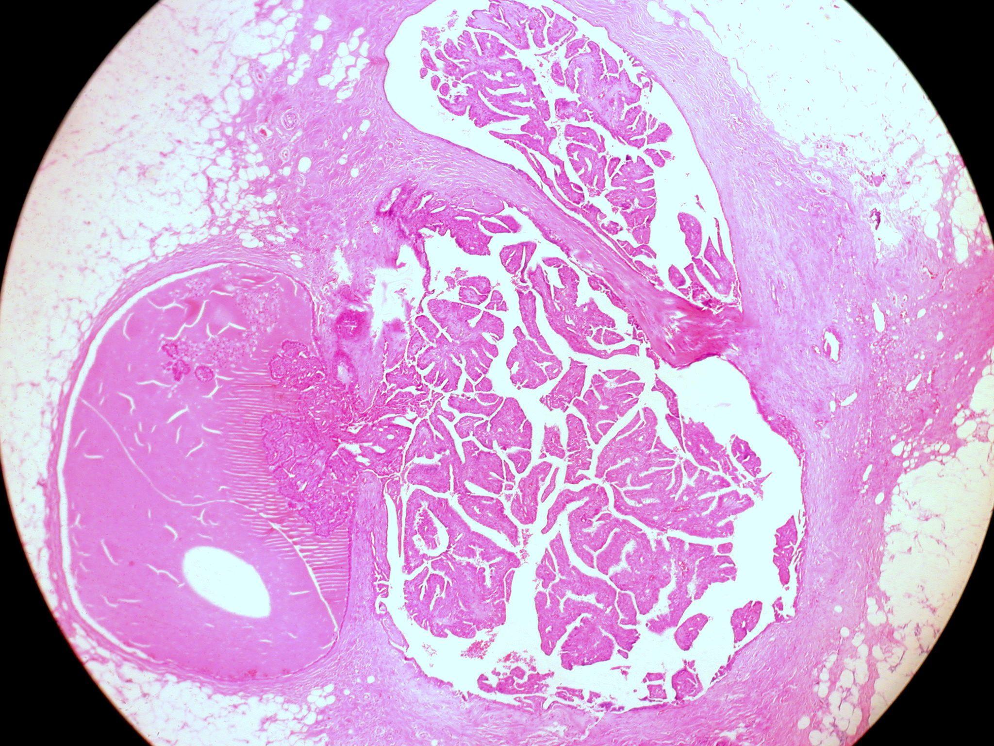 ductalis papilloma patológia