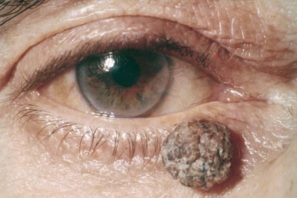 A bőrrák első jelei - Melanóma