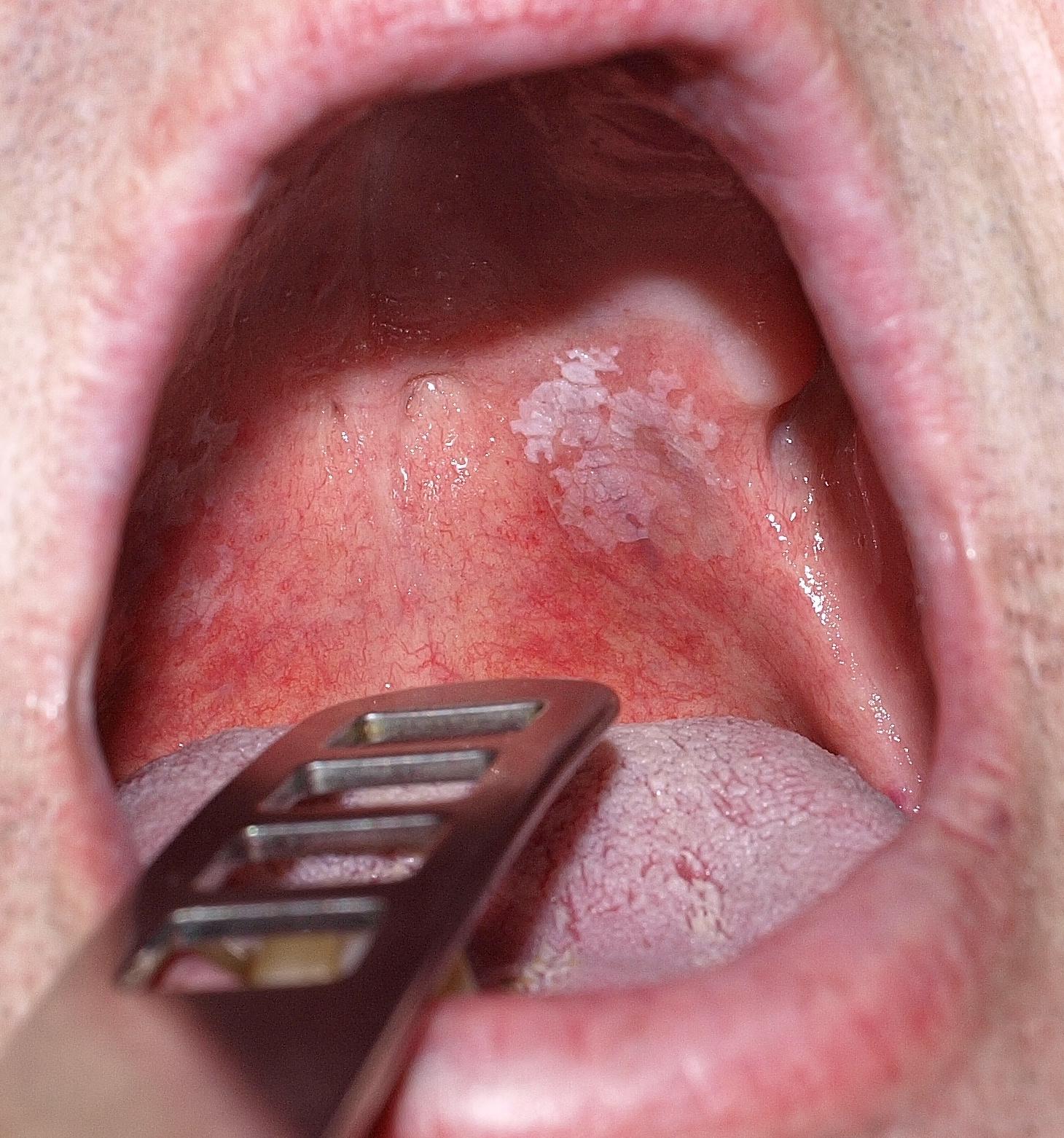 száj papilloma vírus)