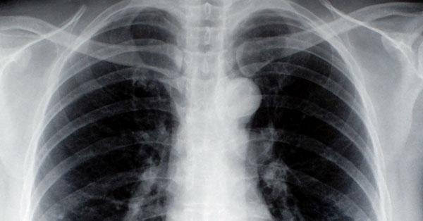 áttétes rák normális cbc)