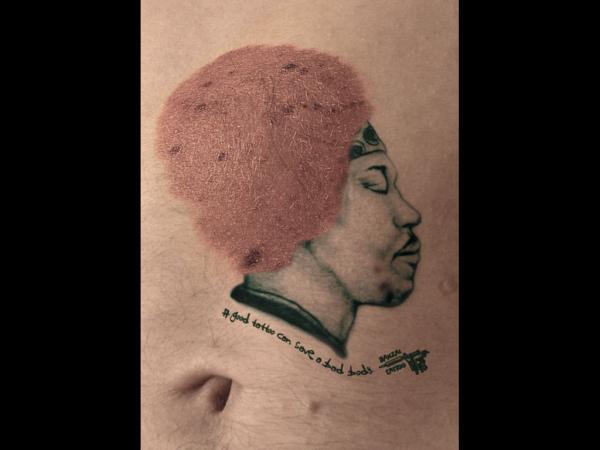 tetoválásból származó bőrrák