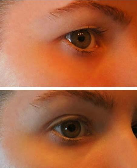 a szem körüli papillómák kezelést okoznak)