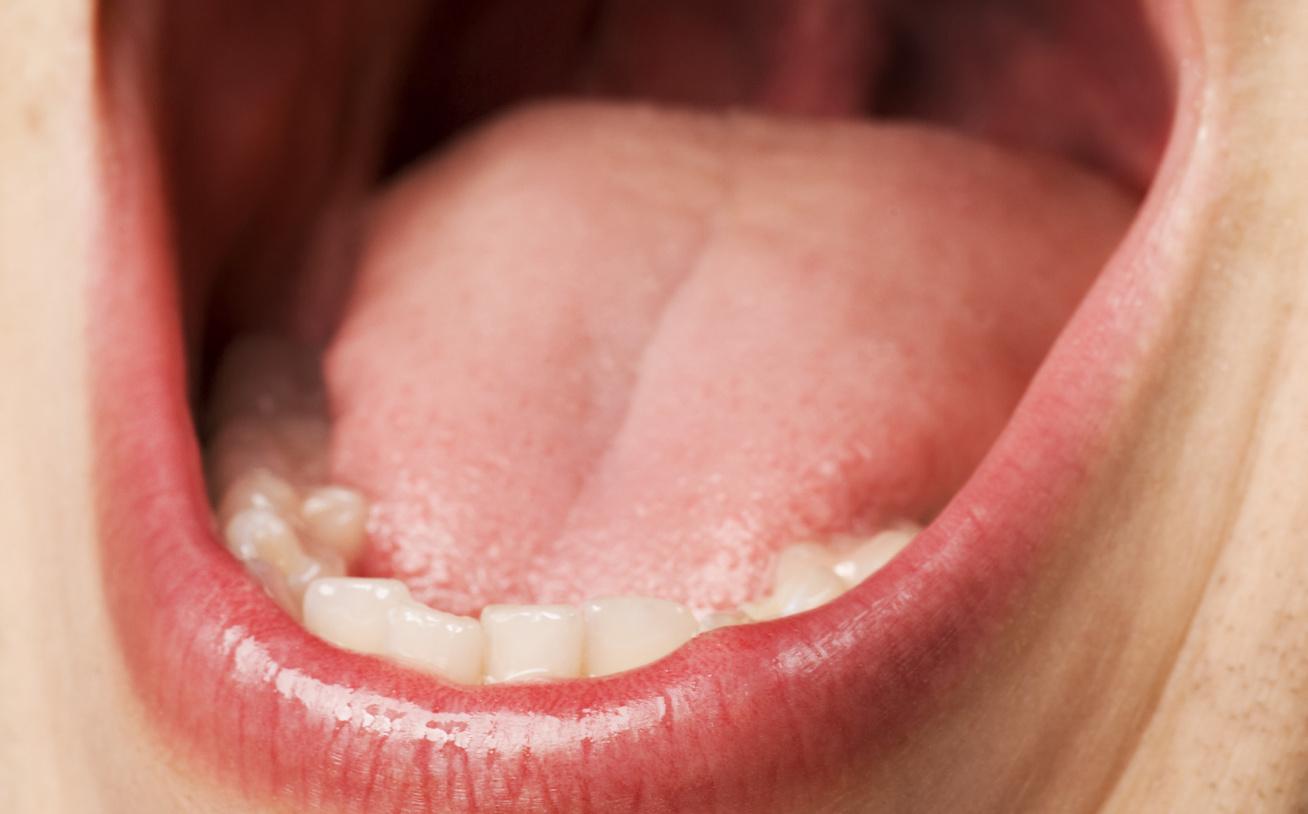 papilloma a száj kezelésének ajkán