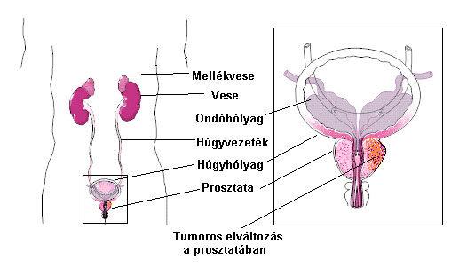 prosztatarák áttétes betegség)