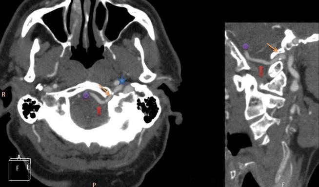 Mi az intraductalis papilloma és miért fejlődik az emlőmirigyben? kezelés - Cirrózis October