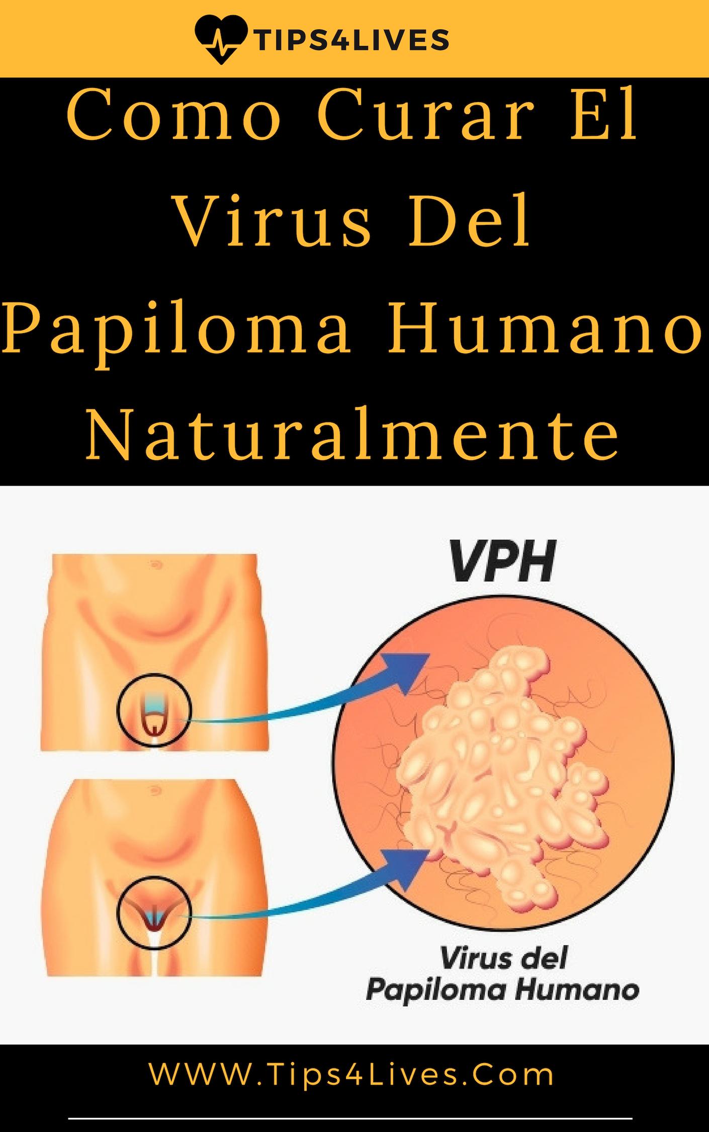 hpv vírus prirodni lecba)