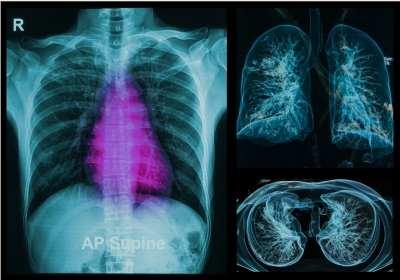 Rákbetegség miatt operált emlő műtéti helyreállítása