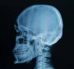 rektális rák röntgen