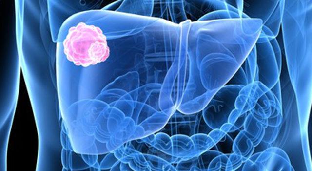 Egyre több daganatos betegség nem halálos, hanem krónikus