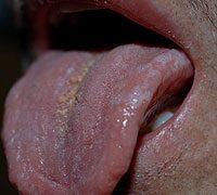 hpv tünetek a szájon)