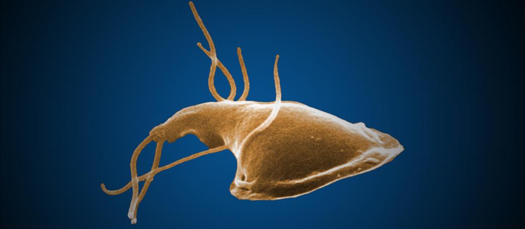 pasozyt giardia és psa objawy hogyan lehet megszabadulni a parazitáktól gyógyszerek nélkül