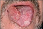 hpv rák humán papillomavírus)