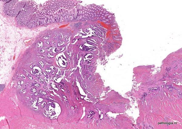 rectosigmoid rák jelentése