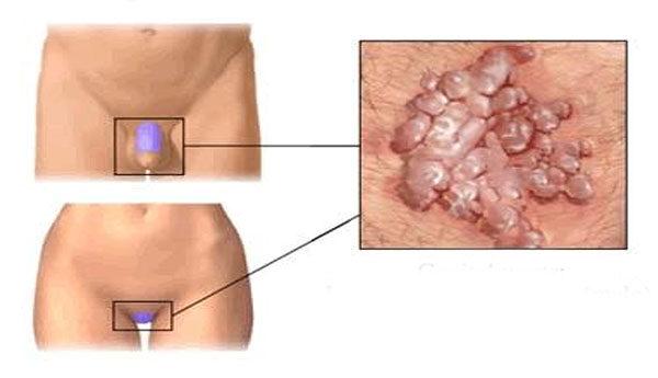 a condyloma arany bajuszával végzett kezelés