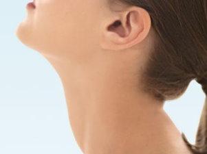 3. stádiumú nyaki rák