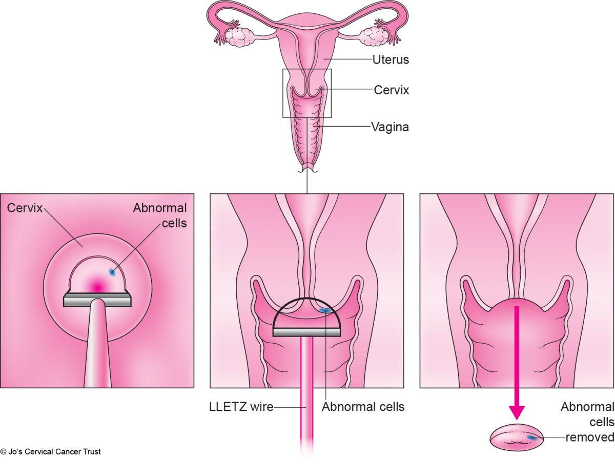 rezorcinol a genitális szemölcsök kezelésében)