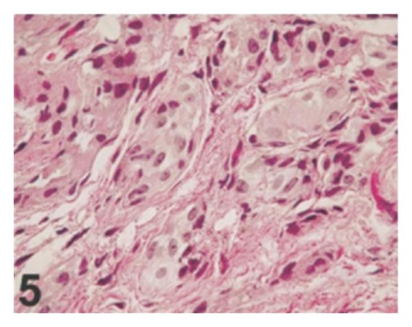 papilloma urothelialis szövettan