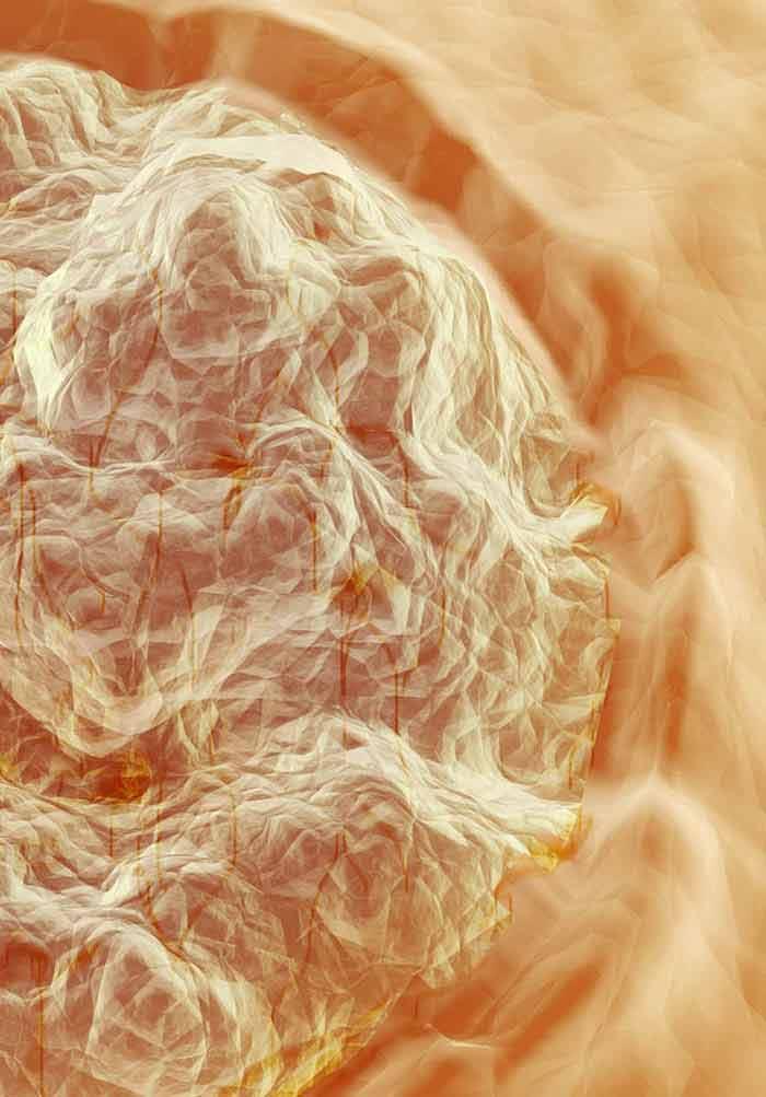 humán papillomavírus dna kimutatása