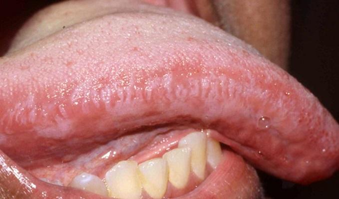 hpv virus na jeziku