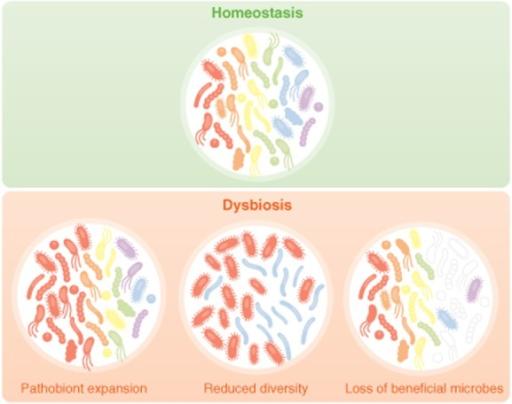 dysbiosis vagy sibo)