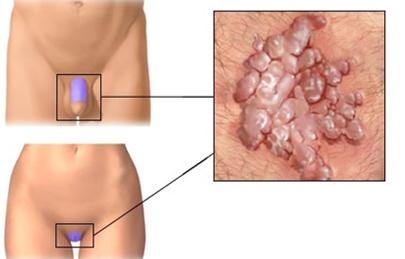 mirigy papilloma vírus)