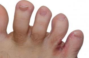 enterobius vermicularis rendszertan