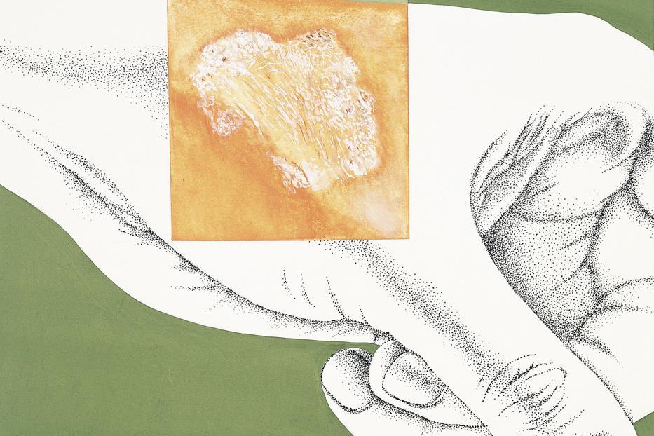 megoldás szemölcsök és papillómák ellen által termelt pinwormos betegségek