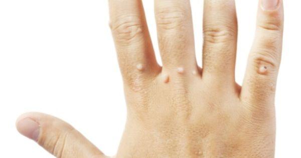 Hpv szemolcs makk. Pusztító szifilisz breast cancer benign or malignant