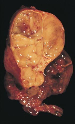 papilloma urothelialis szövettan)