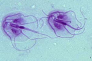Giardia parasiet mens - Giardia parasiet mens. Oeuf - Dicrocoelium dendriticum ( petite douve)