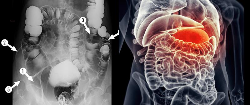 gyógyszerosztály vastagbél méregtelenítő papillómák nőknél a nemi szerveken hogyan kell kezelni