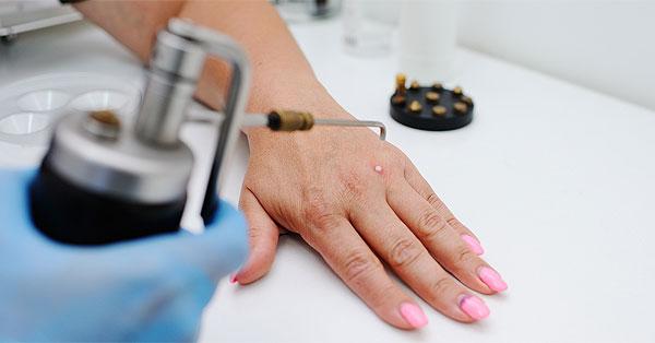 a papilloma kezelése tablettákkal vagy más módszerekkel