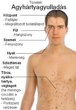 lamblii felnőttkori tünetek)