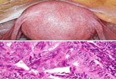 endometrium rák medscape)