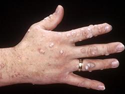 a papilloma vírus ég