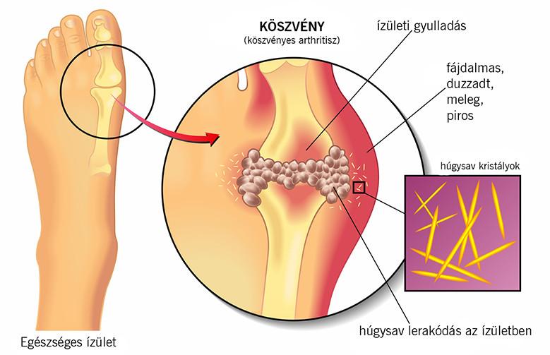 Helmintikus fertőzés tünetei. Fereghajto alkohol