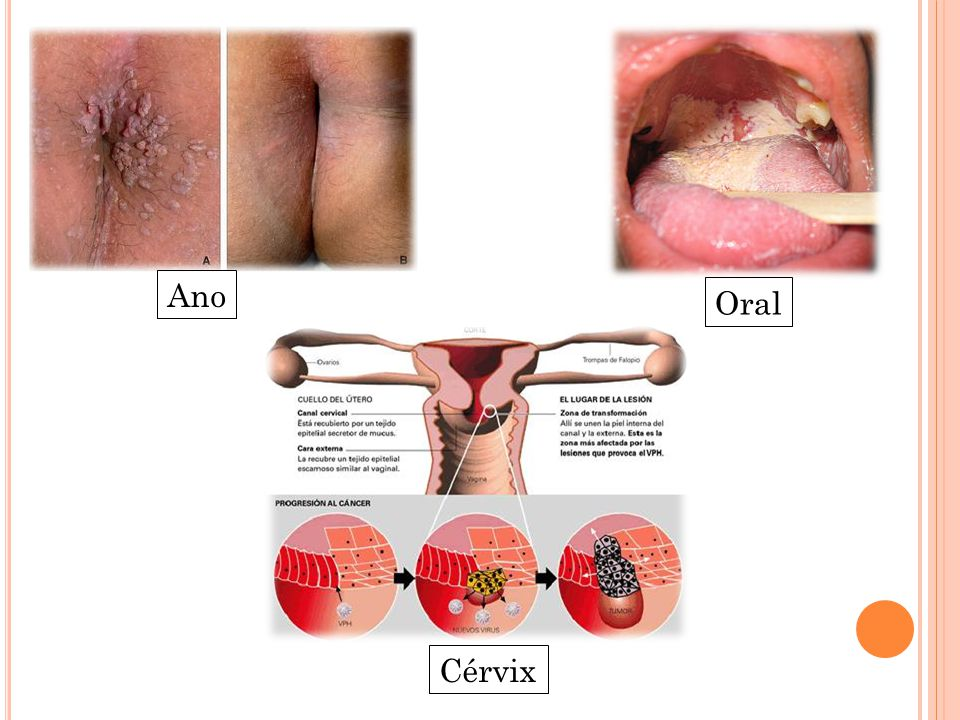 hpv ano mujer)