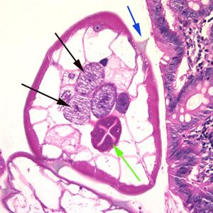 enterobius vermicularis peték
