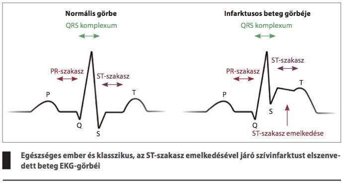 a szívroham tünetei embereknél)