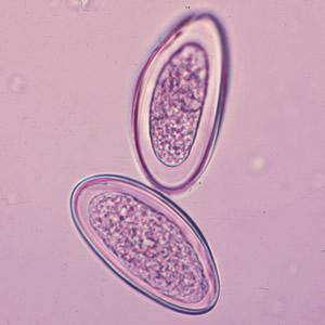 az emberi papillomavírus gyógyítható miért nemi szemölcsök a férfiaknál