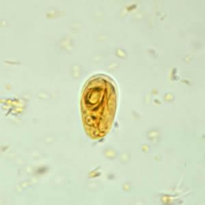 a giardiasis cdc felügyelete