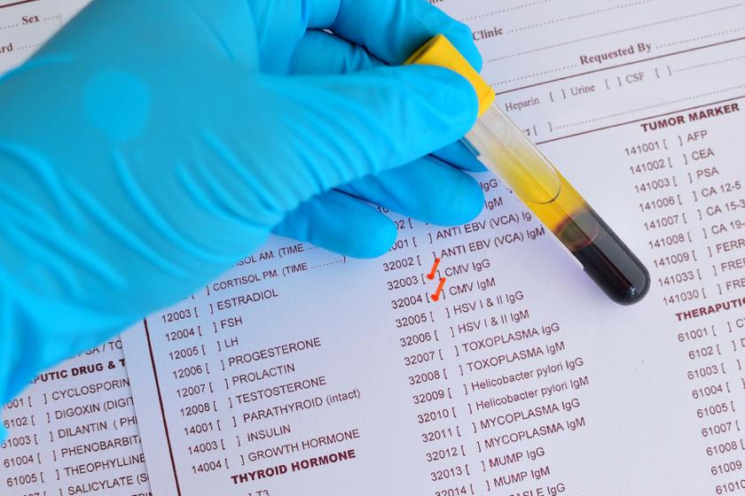 HPV: minden 2. férfit érint