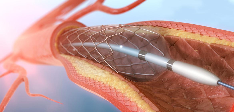 Hajhullás menopauzás nőknél - okai és kezelése - Frizurák