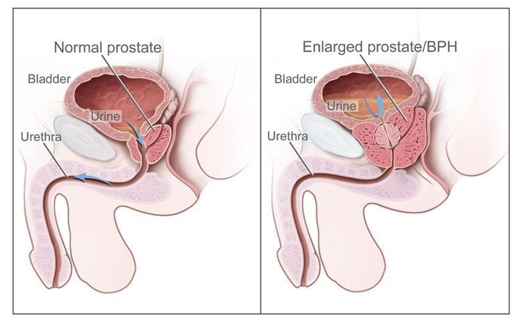 metasztatikus rákos prosztata kezelés