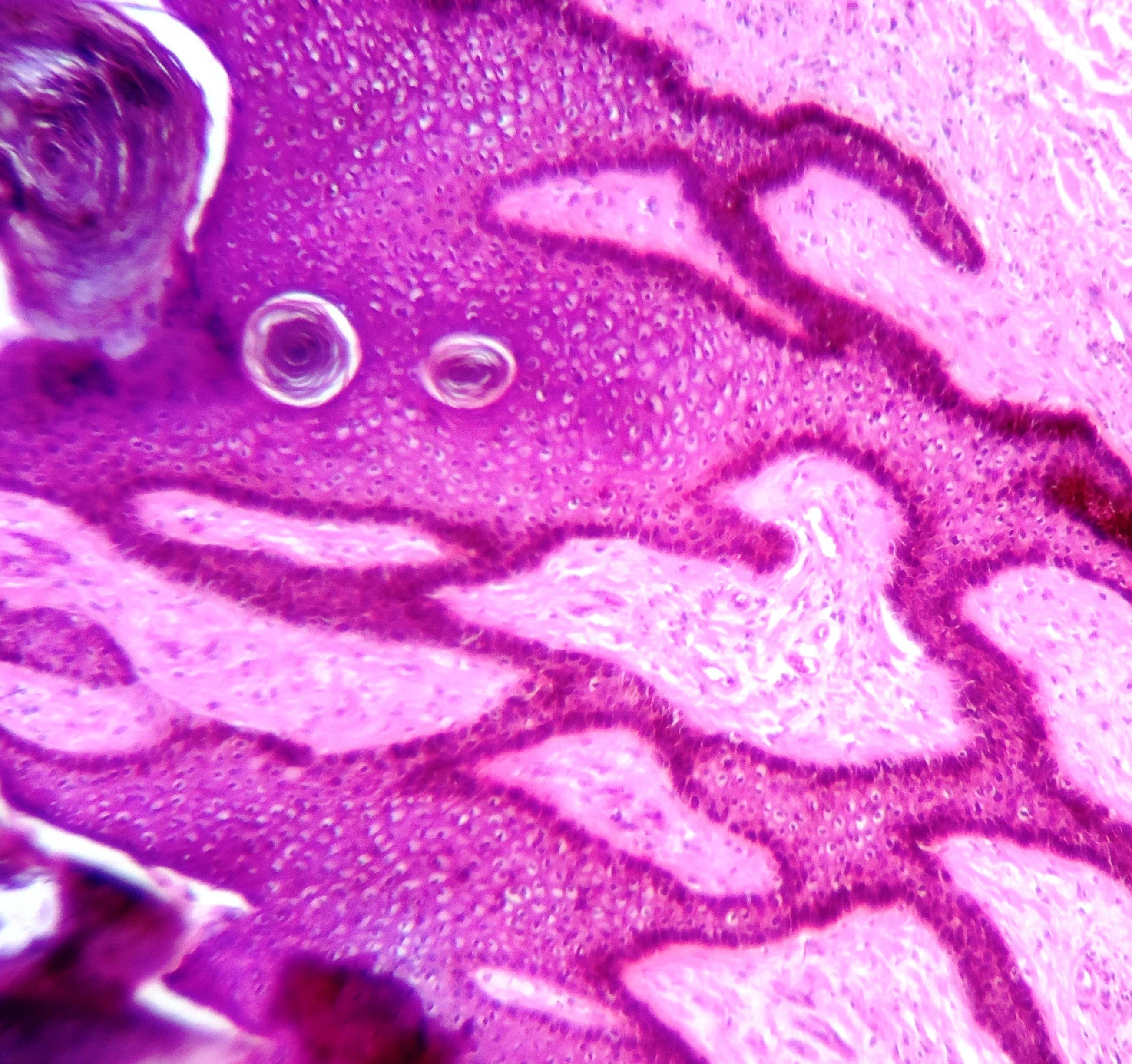 a condyloma kezelése rádióhullámokkal condyloma kezelése az ajkakon