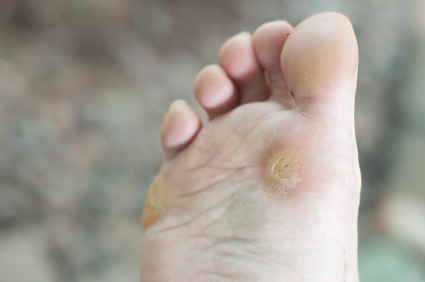 botemedel humant papillomavírus
